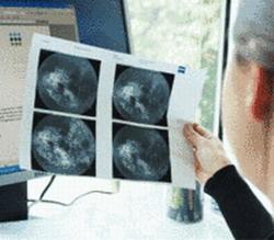 Центр глазной диагностики Терезиенхёе - Мюнхен - Германия