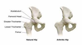Лечение коксартроза - эндопротезирование тазобедренного суставов в Израиле