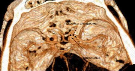 КТ-Ангиография Аневризма Внутренней сонной артерии на уровне отхождения глазной артерии справа