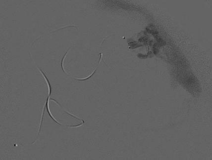 Супер-селективный снимок – микрокатетер введён в сосудистую сеть узла АВМ