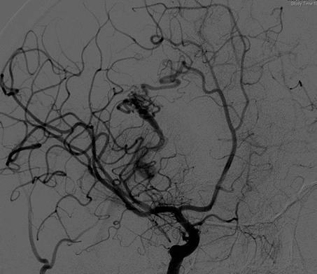 АВМ - артерио-венозная мальформация