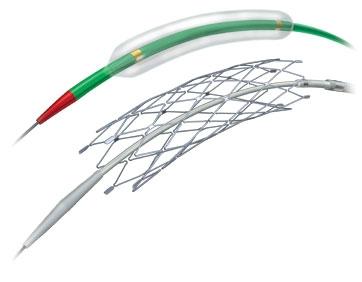Эндоваскулярное лечение аневризмы мозга - Самораскрывающийся стент