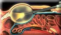 Клиника урологии, детской урологии и уроонкологии - Niederberg - эндоскопическая операция
