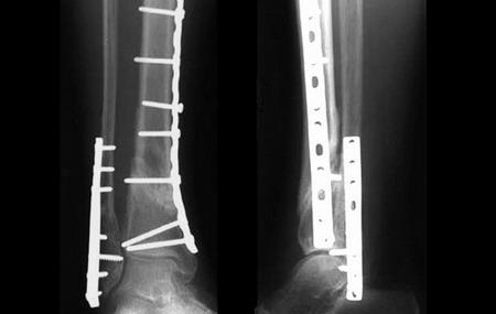 Операция накостного остеосинтеза - Центр ортопедии и травматологии госпиталя Федеральной таможенной Службы России