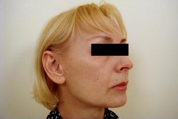 Подтяжка лица (фейслифтинг) - работа пластического хирурга Кулиева Т.А. – фото ПОСЛЕ операции