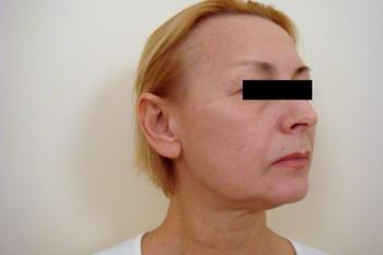 Подтяжка лица (фейслифтинг) - работа пластического хирурга Кулиева Т.А. – фото ДО операции