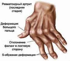 С чем связаны боли в спине предплечье