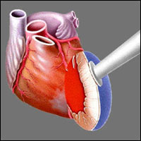 РЕВАСКУЛЯРИЗАЦИЯ МИОКАРДА - Головная часть Heart Laser, через которую поступают лазерные импульсы, прикладывается к эпикарду левого желудочка