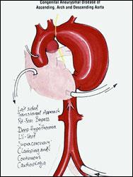 АНЕВРИЗМА АОРТЫ - Схема операции по протезированию аневризмы, показанной на ангиограмме (рис. 2). АИК подключается к бедренной артерии, сердце разгружается с помощью вента