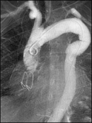 АНЕВРИЗМА АОРТЫ - Ангиограмма, сделанная спустя несколько месяцев после операции