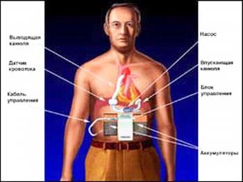 ИСКУССТВЕННОЕ СЕРДЦЕ - В 1998 году впервые в мире был имплантирован искусственный желудочек с принципиально новым принципом действия, сконструированный при участии специалистов NASA и Майкла ДеБейки. Этот маленький насос массой всего 93 грамма способен перекачивать до 6-7 литров крови в минуту и тем самым обеспечивать нормальную жизнедеятельность всего организма