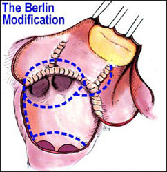 МЕРЦАТЕЛЬНАЯ АРИТМИЯ - хирургическое лечение МЕРЦАТЕЛЬНОЙ АРИТМИИ