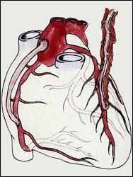 КОРОНАРНОЕ ШУНТИРОВАНИЕ - Справа на рисунке показан анастомоз левой грудной артерии с левой нисходящей коронарной артерией, а слева показан венозный шунт между аортой и правой коронарной артерией