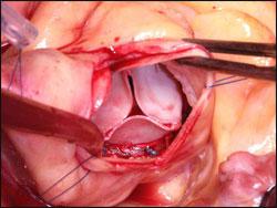 КЛАПАНЫ СЕРДЦА - ИСКУССТВЕННЫЕ КЛАПАНЫ СЕРДЦА - После удаления кальцифици- рованных створок клапана и вшивания биологического протеза типа Mitroflow 23 мм. Больной в этот момент находится на аппарате искусственного кровообращения, его сердце не бьётся