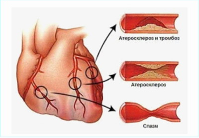 Ишемическая болезнь сердца - операция аортокоронарного шунтирования
