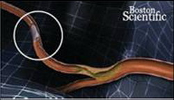 Стентирование коронарных артерий (до операции)