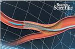 Стентирование коронарных артерий (после операции)