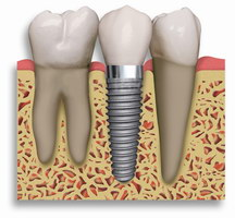 Локализация зубного имплантата в кости