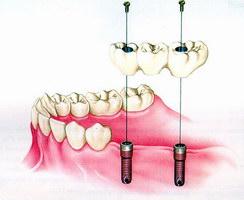 Фиксация мостовидного протеза на зубные имплантаты