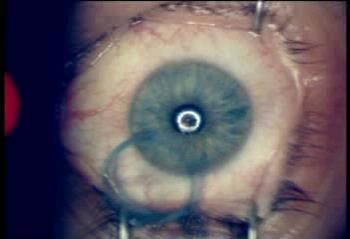 Операция лазерной коррекции зрения методом ЛАСИК
