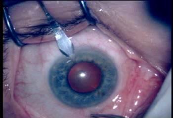 Лечение катаракты - факоэмульсификация - клиника офтальмологии ОАО МЕДИЦИНА