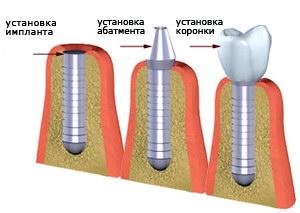 Этапы классической имплантации зубов