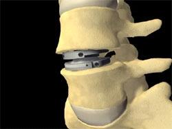 Восстановление сегмента позвоночника титановым протезом