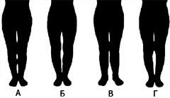 Коррекция формы ног - виды искривления ног