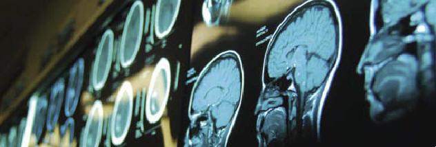 Лучевая диагностика сосудов головного мозга