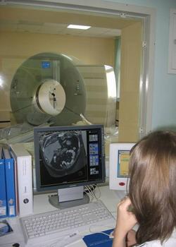 КТ-ангиография - компьютерный томограф