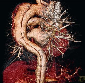 КТ - ангиография сердца и сосудов