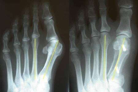 Вальгусная деформация на рентгенограмме - Центр ортопедии и травматологии госпиталя Федеральной таможенной Службы