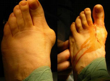 После операции вальгусной деформации первого пальца стопы - Центр ортопедии и травматологии госпиталя Федеральной таможенной Службы